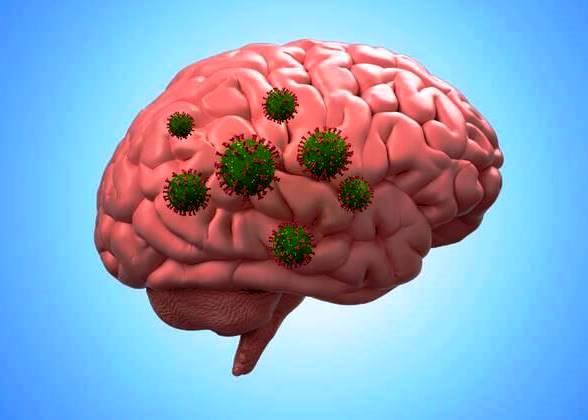 Болезнь Альцгеймера и COVID-19